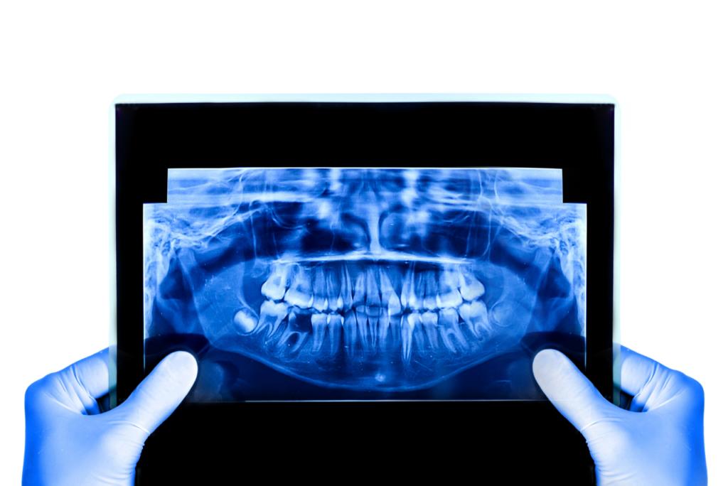 radiología dental canarias